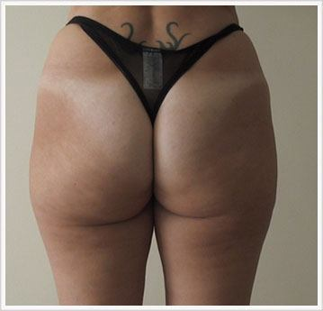 Buttock Fat Dissolving Treatment After