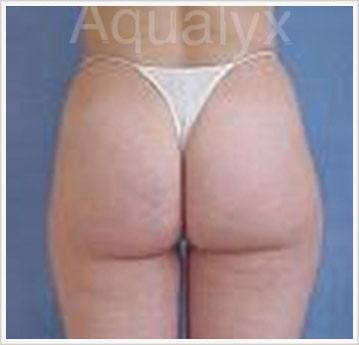After Aqualyx Fat dissolving Treatment