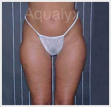 Aqualyx belly Before treatment