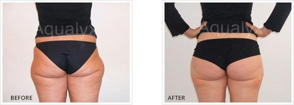 Aqualyx Buttock Treatment before and After