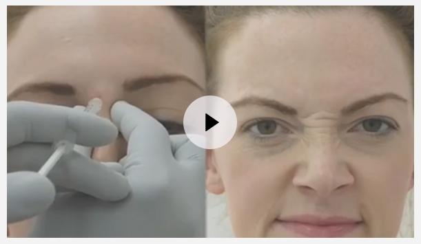 Botox Jaw Reduction | Non Surgical jawline Treatment UK