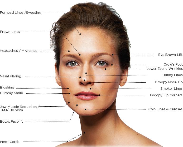 Botox London Injection Treatment Areas