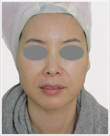 Non Surgical Facelift Treatment After