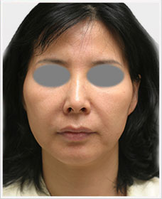 Non Surgical Facelift Treatment Before