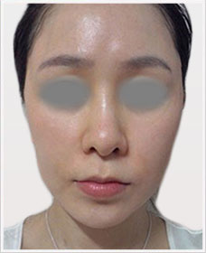 Non Surgical Facelift after