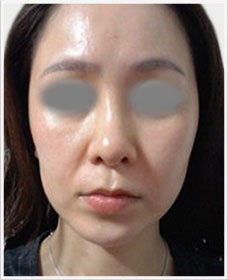 Non Surgical Facelift before