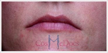 Derma Filler Wode lips Treatment Before