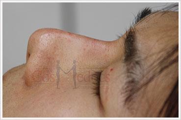 Rhinoplasty Treatment after