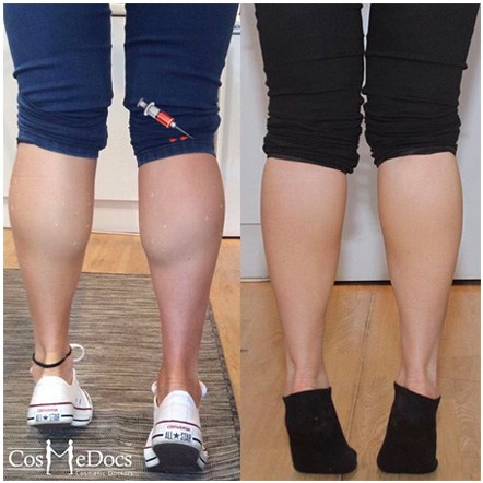 calf reduction before after treatment