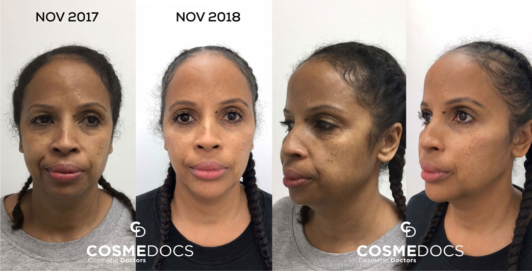chin enhancement with filler before and after