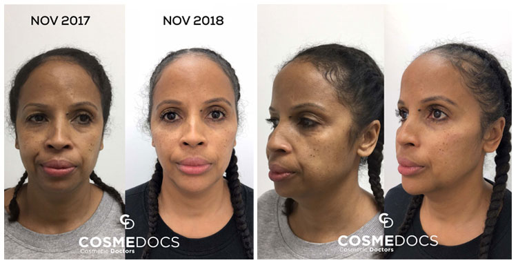 non surgical chin enhancement treatment before and after