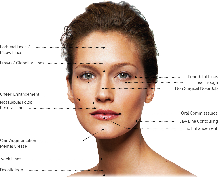 Botox London Injection Treatment Areas