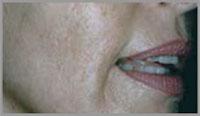 Dermaroller Treatment for philtrum After