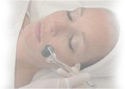 Lady on Dermaroller Treatment