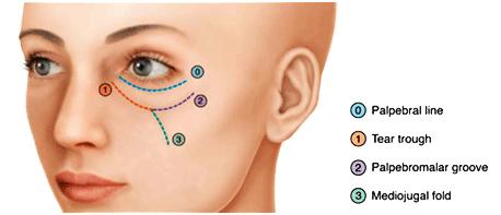 Tear Trough Treatment with Dermal Filler | Cosmedocs UK