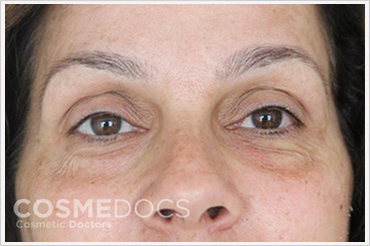 Darma Filler Treatment for Eye Circle Before