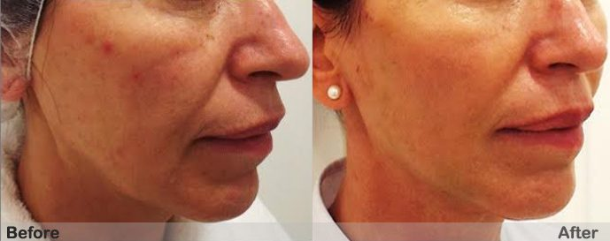 PDO Non Surgical facelift before and after