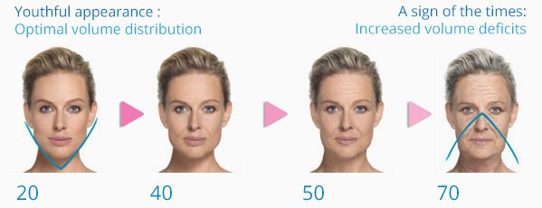 Facial Volume Loss