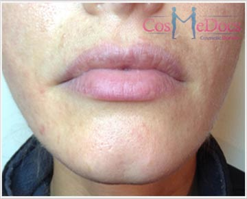 Dermal Filler Treatment for Chin Crease Treatment before