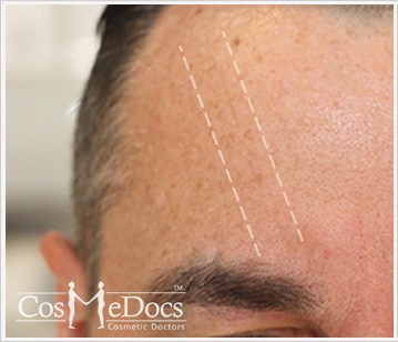 Dermal Fillers Before and After Forehead