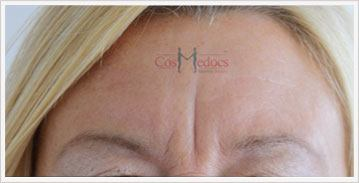 dermal fillers before and after for frown lines