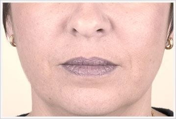Nasolabial dermal Filler Treatment After