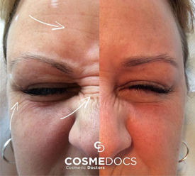 Forehead and crows feet treatment with filler