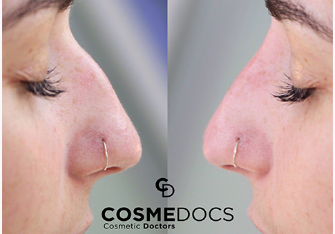 Nose job london treatment