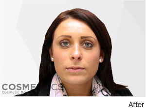 Botox Jaw Reduction Treatment After