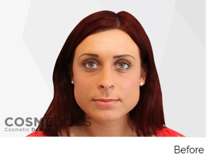 Botox Jaw Reduction Treatment Before