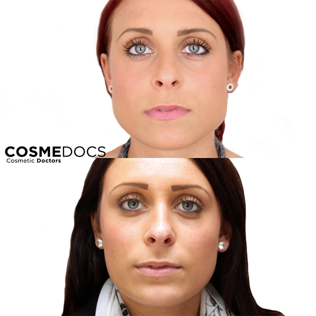 Botox Jaw Reduction Treatment Female