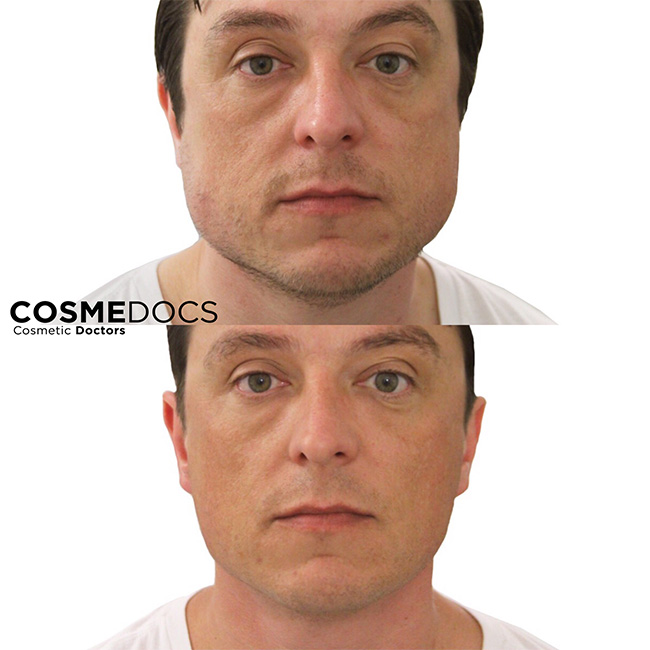 Botox Jaw Reduction Treatment Male
