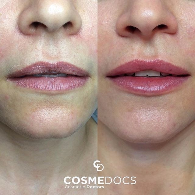 Lip fillers london treatment at CosmeDocs