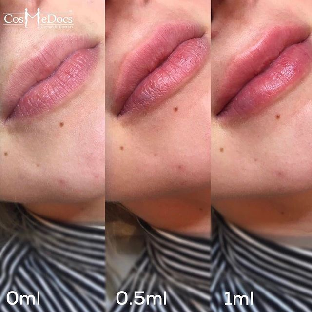 lip filler treatment before and after
