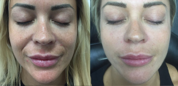 Microneedling Treatments Before After