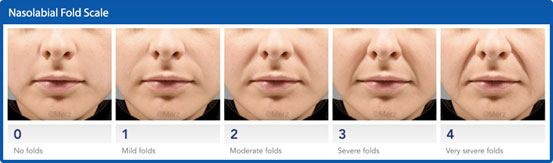 nasolabial Folds Scale