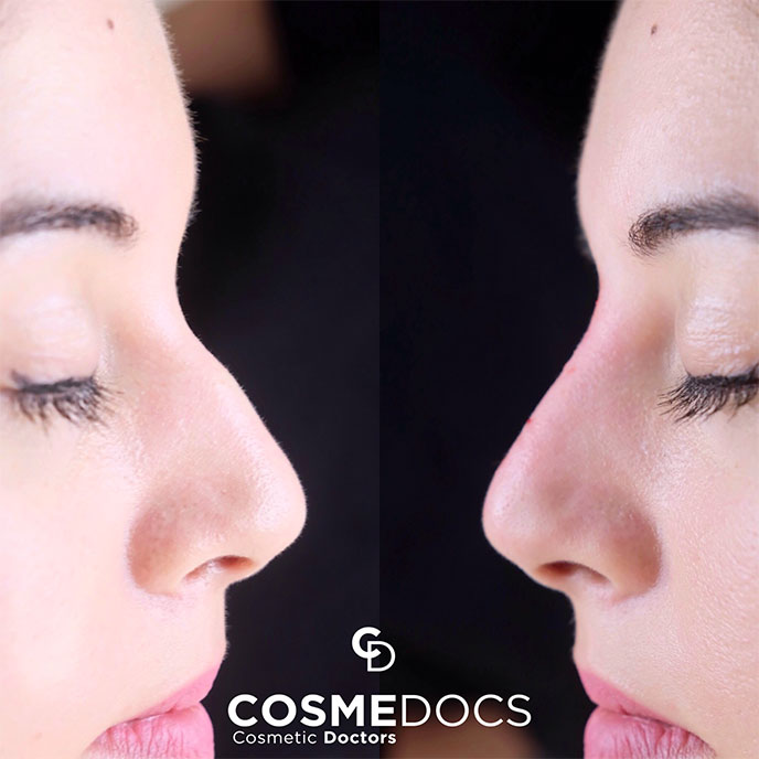 Nose Job Treatment in London before and after small