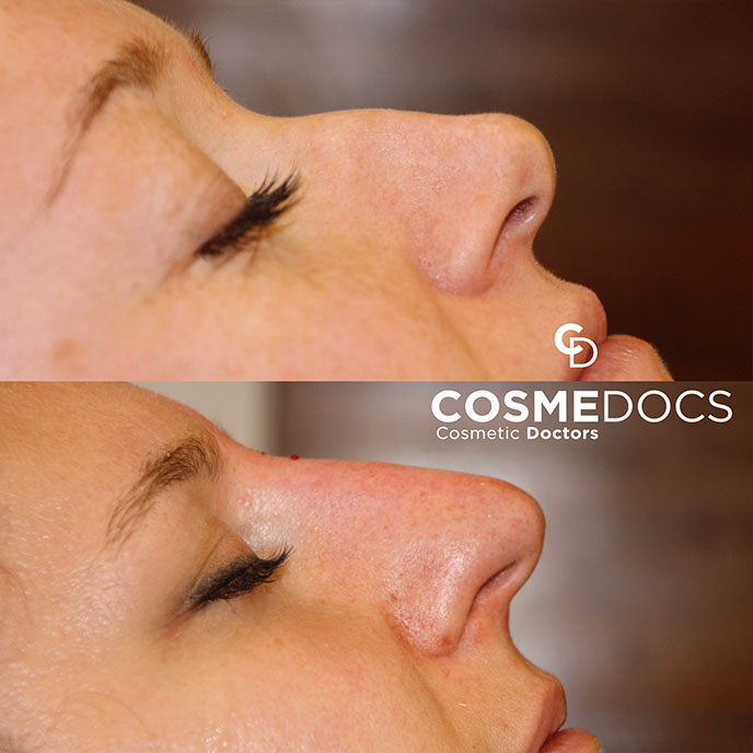 Dorsal Bump Nose job treatment with fillers small