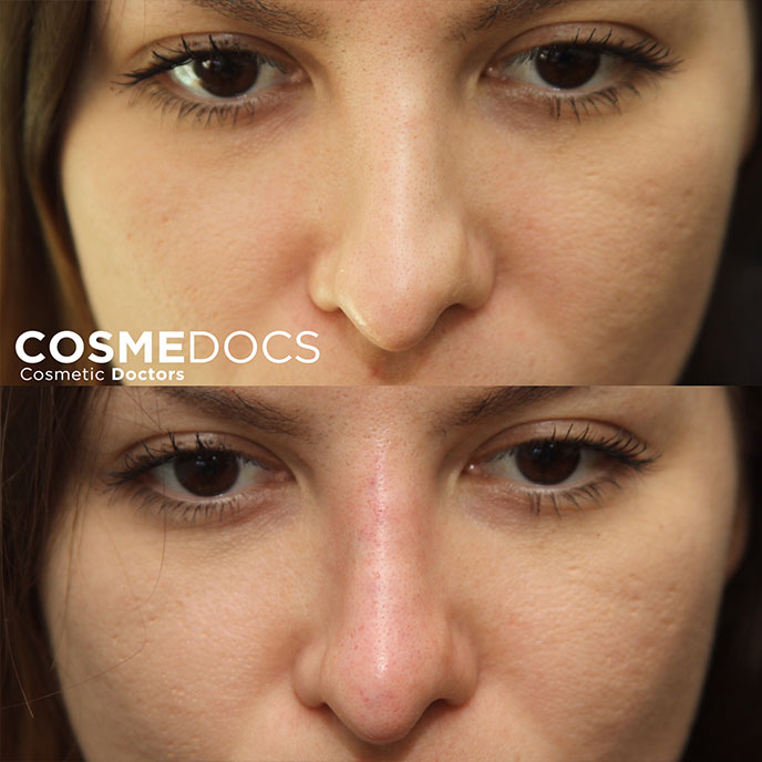 Curved Nose non surgical treatment with filler small