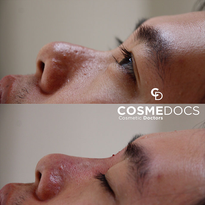 Chinse Male Nose job london treatment before and after small