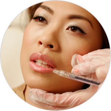 Lip enhancement treatment with fillers