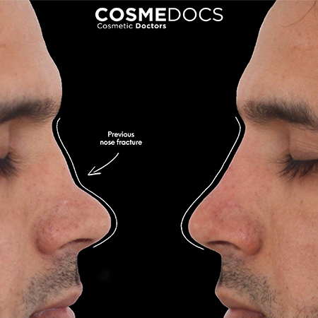 Non surgical nose job before & Afte treatment picture