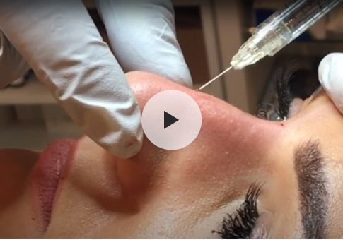 Nose job Treatment in London
