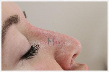 Rhinoplasty Nose Job Treatment after