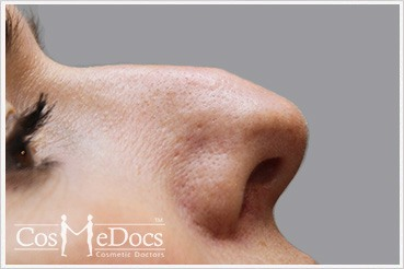 Nose Non surgical Treatment