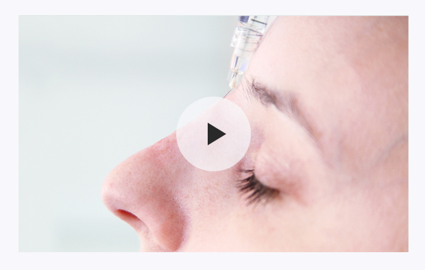 Bump on Nose Treatment with Fillers