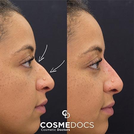 Small Dorsal Bump nose job london treatment wtih fillers small