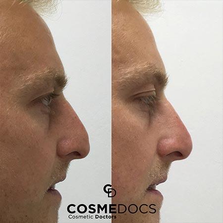 Flat Tip Nose nose job filler treatment small