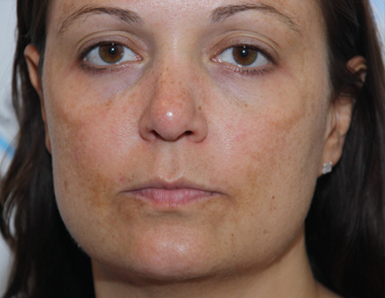 Before Facial Rejuvenation Treatment - Peel To Reveal
