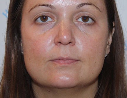 Facial Rejuvenation Treatment - Post Peel